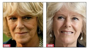 camilla parker-bowles and the therapy with bee venom