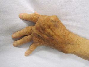 rheumatoid arthritis on a hand