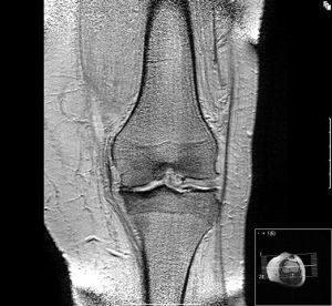 osteoarthritis at a knee
