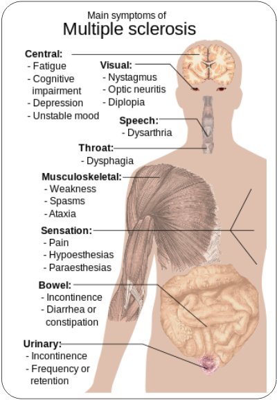 symptoms of multiple sclerosis