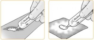 how to apply activon on the wound