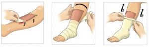 how to use eclypse absorber dressing