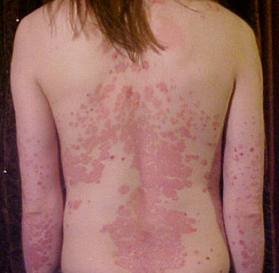 bad look of psoriasis