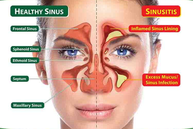 sinusis inflammation