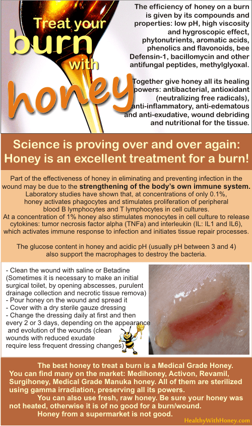 should you put honey burn